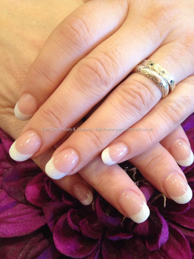 White glitter French acrylic tips with glitter acrylic overlay