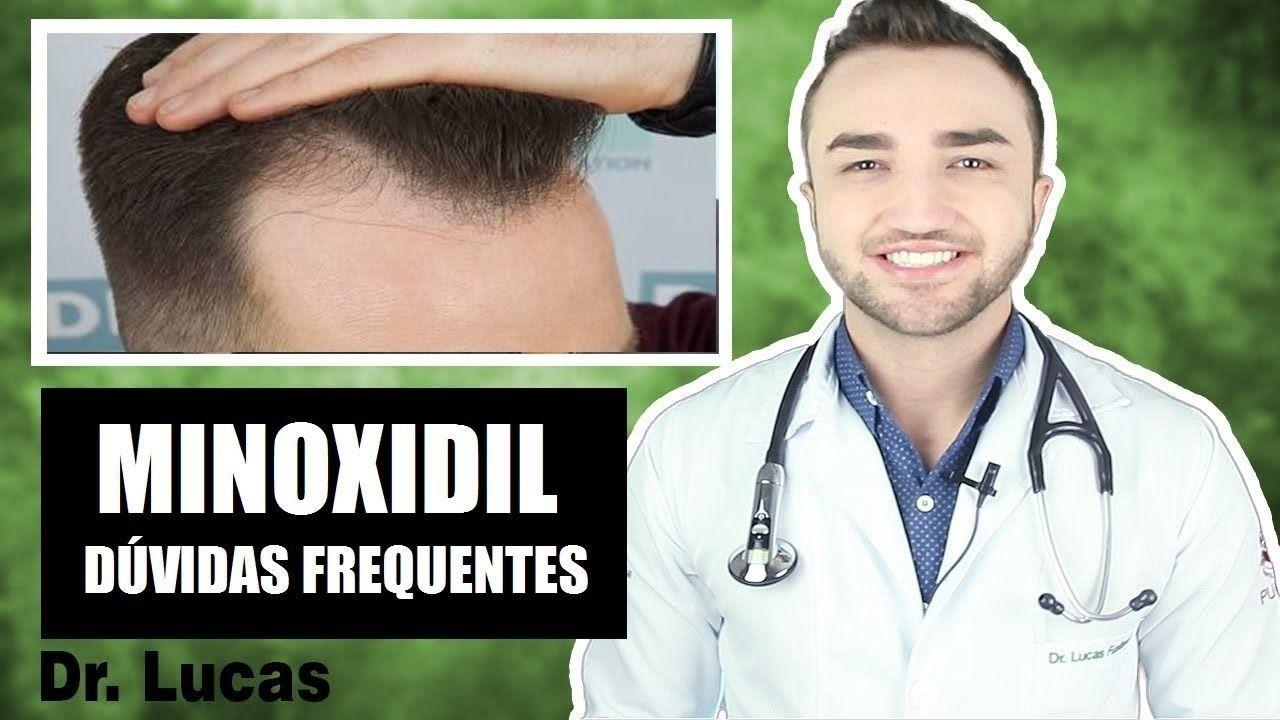 Minoxidil Funciona Duvidas Mais Frequentes Minoxidil