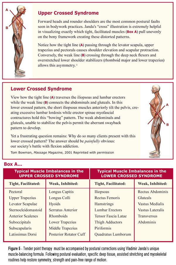 Upper And Lower Crossed Syndrome Physical Therapy  Npte Physical