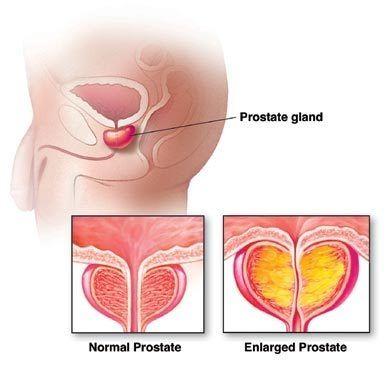 Oxiori felnőttkori tünetekben, Bélféreg ellen Felnőttkori helminthiasis kezelés