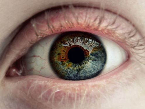 partial heterochromia i have this but with hazel and. Black Bedroom Furniture Sets. Home Design Ideas