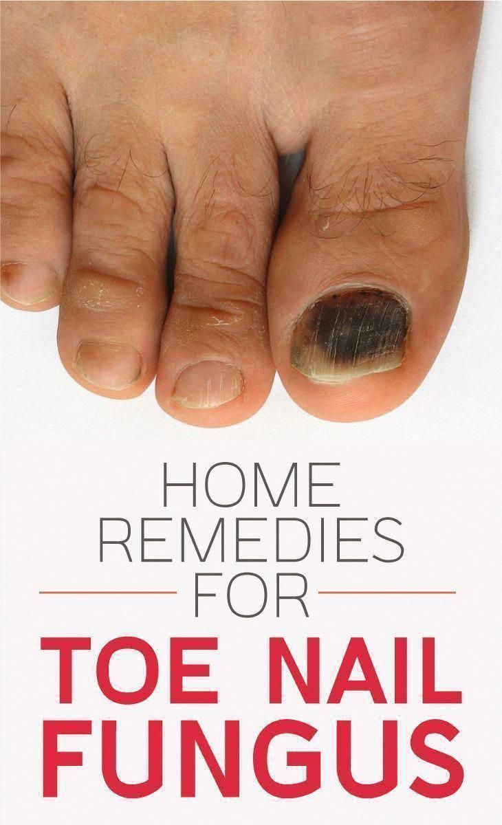 The One Thing to Do for Get Rid of Warts - Healthy