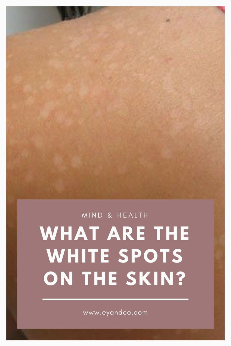 What are the white spots on the skin (With images) | White ...