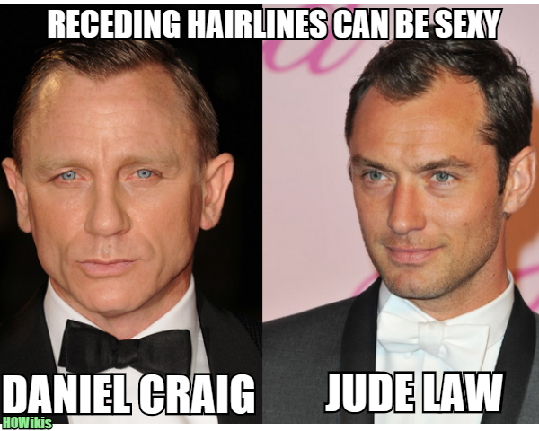 Haircuts Men Thin Receding Hairline   Google Search