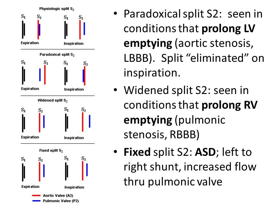 Different Ways To Split S2 Paradoxical Split S2 Aortic Stenosis