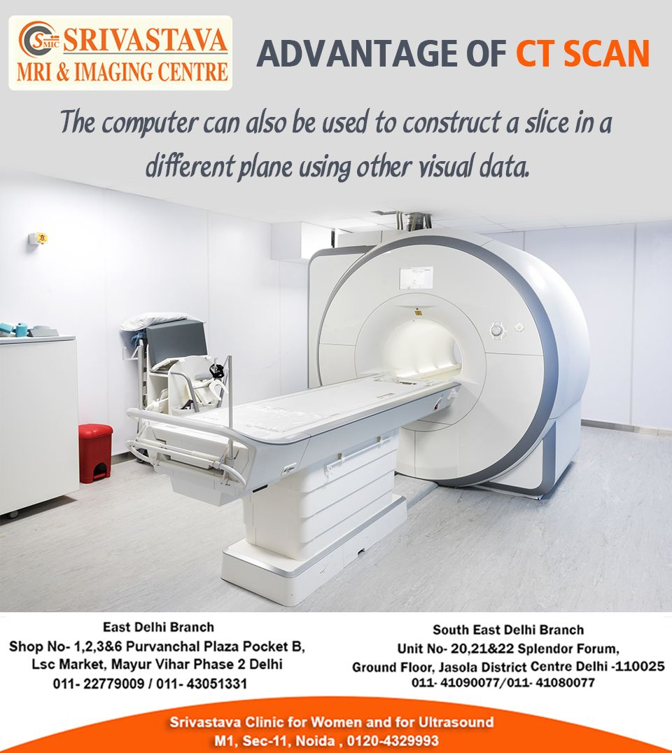 Are you searching for the CT Scan Centres near Apollo