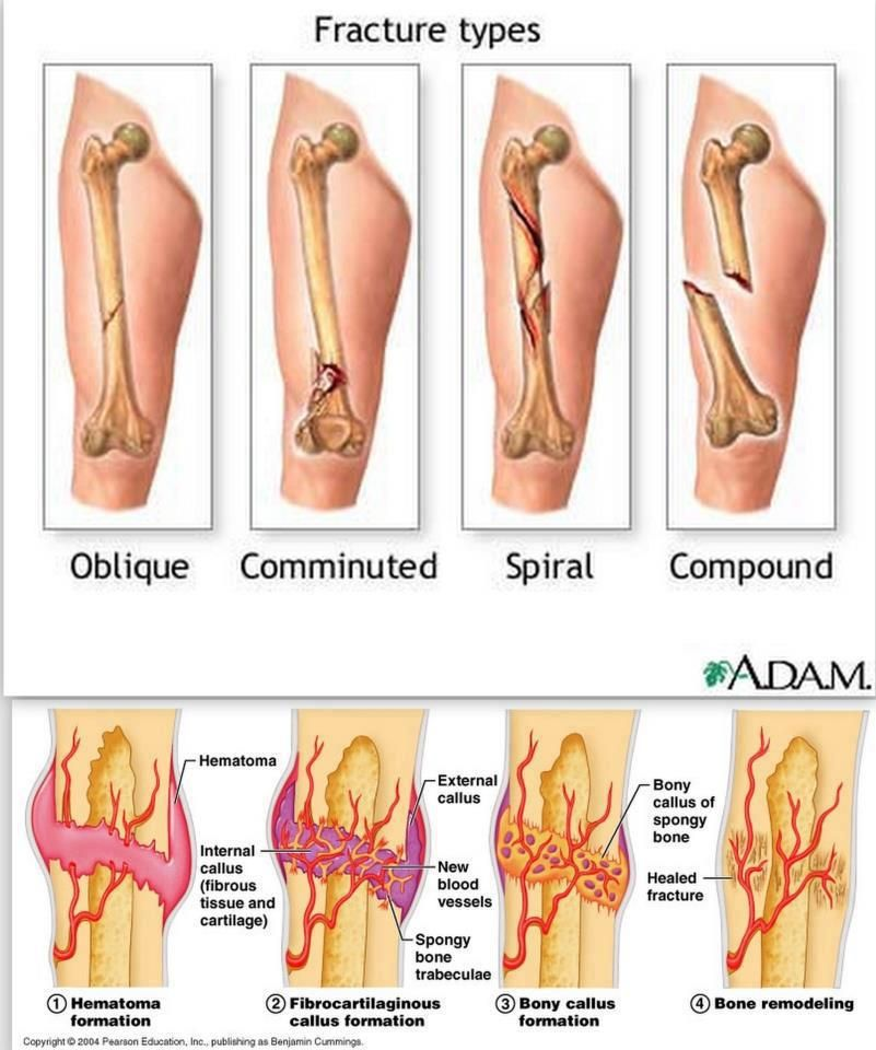 Fracture types and Stages of healing: All fractures can be broadly ...