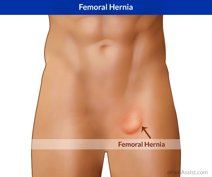 Femoral Hernia   Back Pain Relief and Exercises   Hernia symptoms