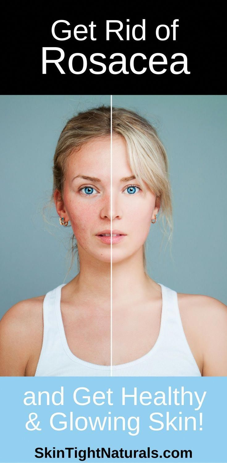 How to get rid of rosacea skin tight naturals