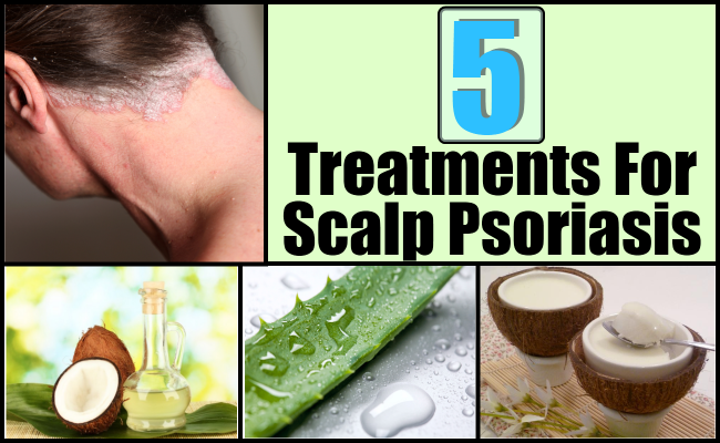 home remedies for psoriasis on scalp | revolution and remedies, Skeleton