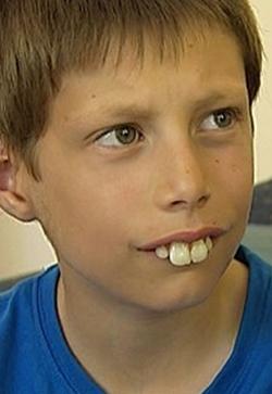 Buck Teeth Teeth Buck Teeth Opposites