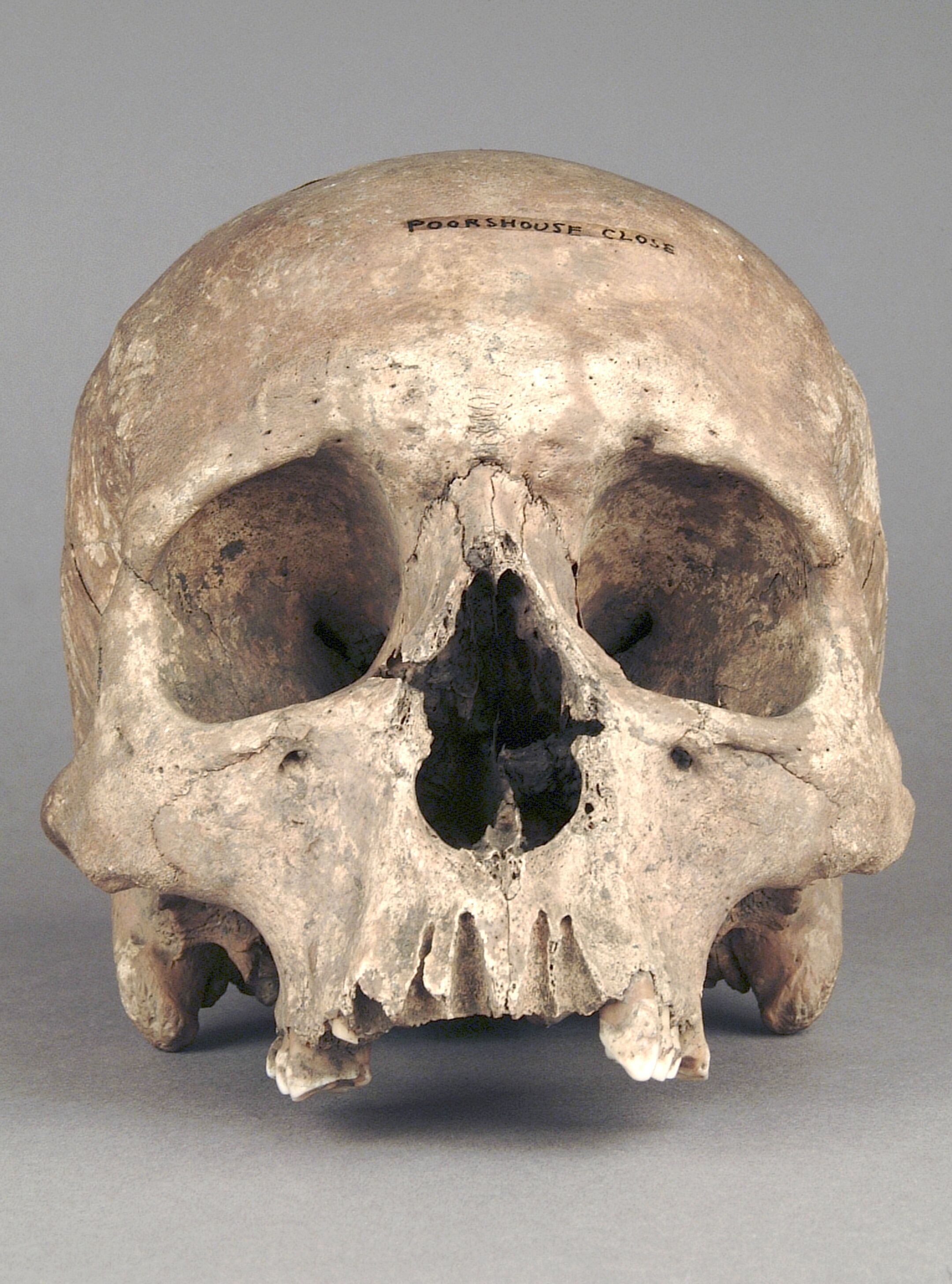Real Human Skull Front View Real Human Skull Homo Pictures To Pin On
