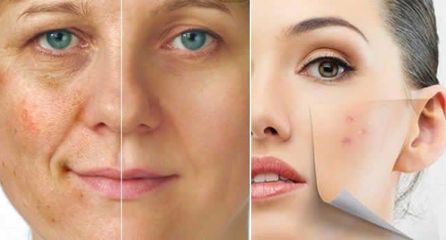 Nata médica de pigmentação