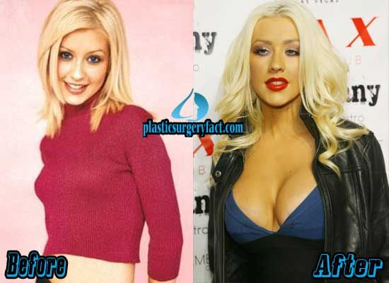Does christina aguilera have breast implants