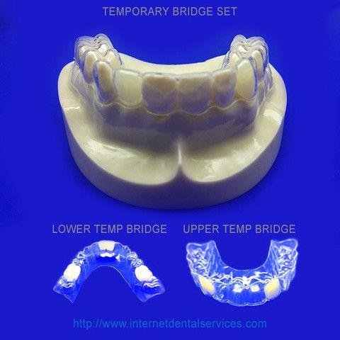 Temporary Bridges The Temporary Bridge (Clear Retainer or