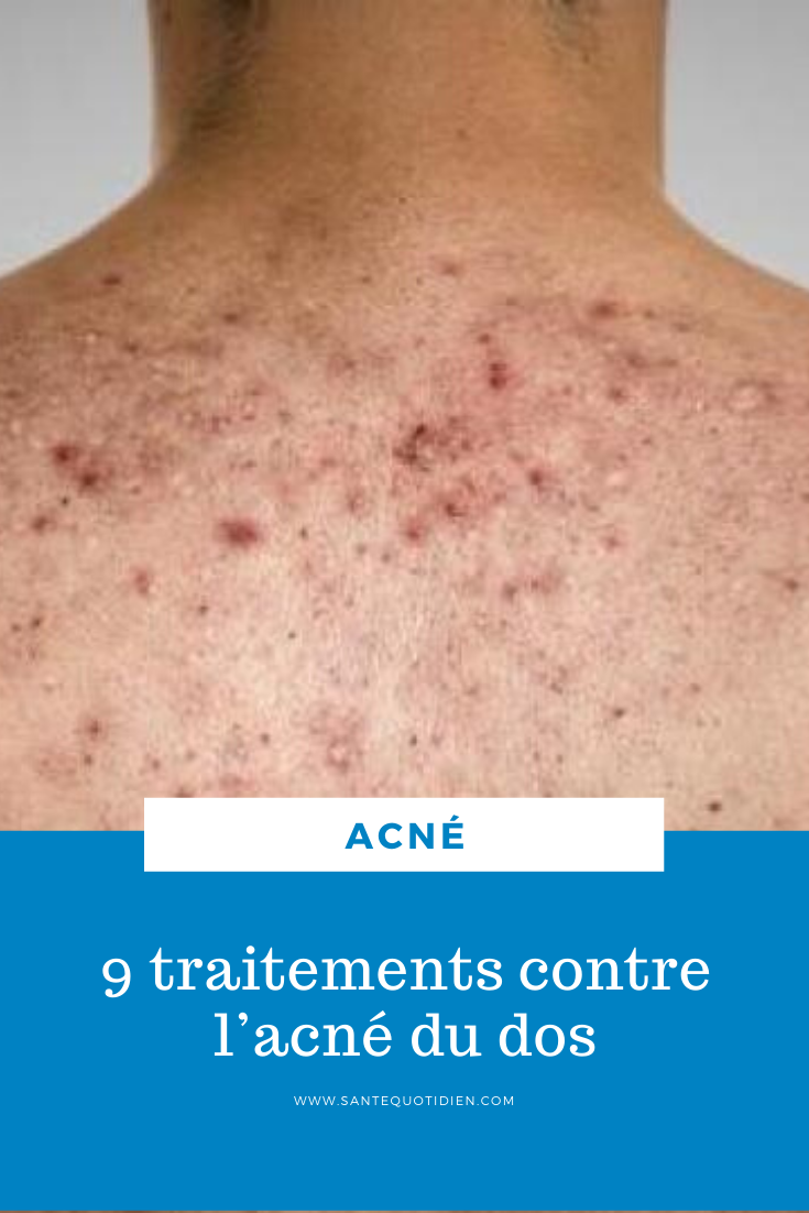 Épinglé sur acné astuce