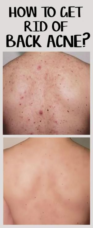 10 Home Remedies for Back Acne   Health & Beauty   Back acne