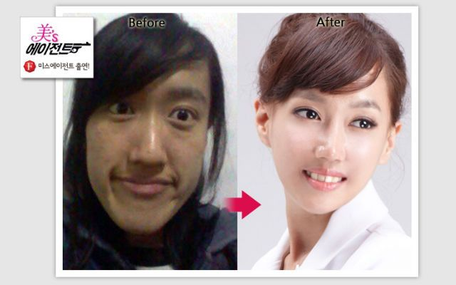 Korean Plastic Surgery Before After If You Are Considering A Family Dentist Click On The Image