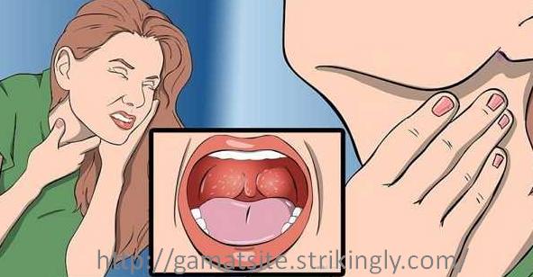 Cara Mengobati Tenggorokan Sakit