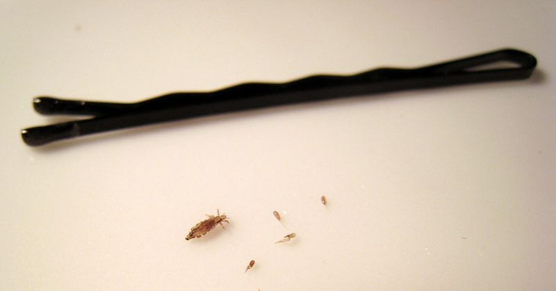 Head Lice Are Transferred From Person To Person By Close Hair To