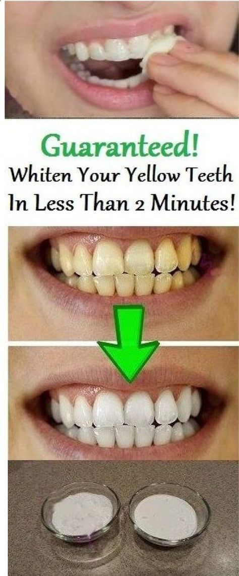 GUARANTEED TEETH WHITENING IN LESS THAN 2 MINUTES! #bestteethwhitening