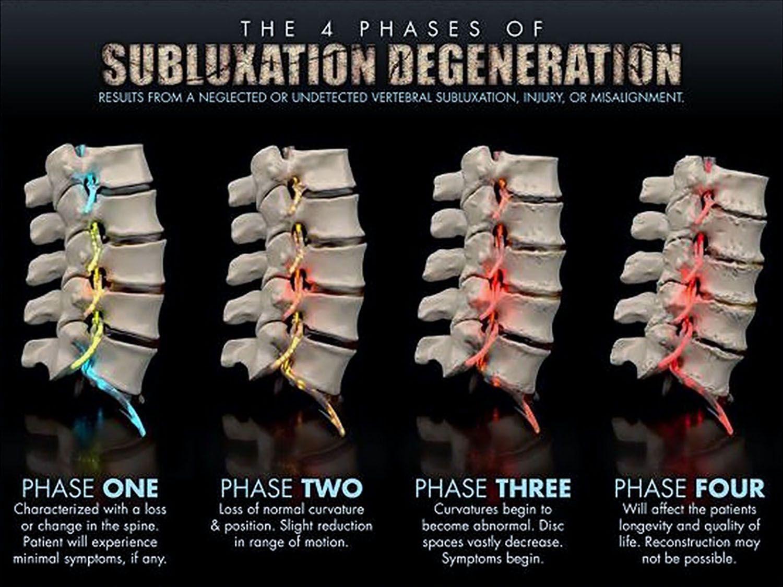4 Phases Of #subluxation Degeneration. #chiropractic #