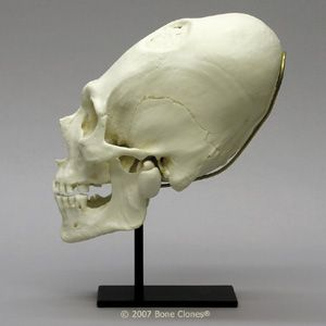 Peruvian Male Skull with Cranial Binding and Trephination BC-201