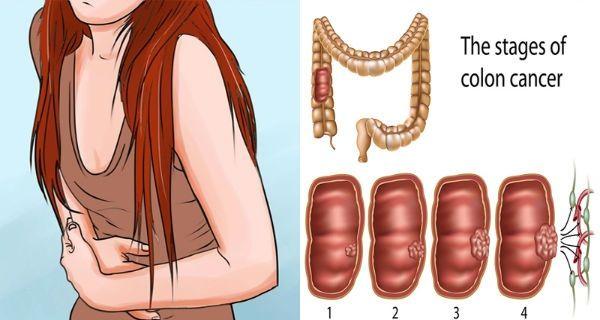 áttétes rák és bőr laporan practicum platyhelminthes planaria
