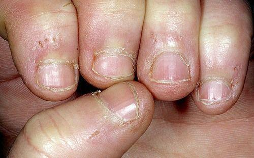 Las manchas en la piel del hongo de las uñas