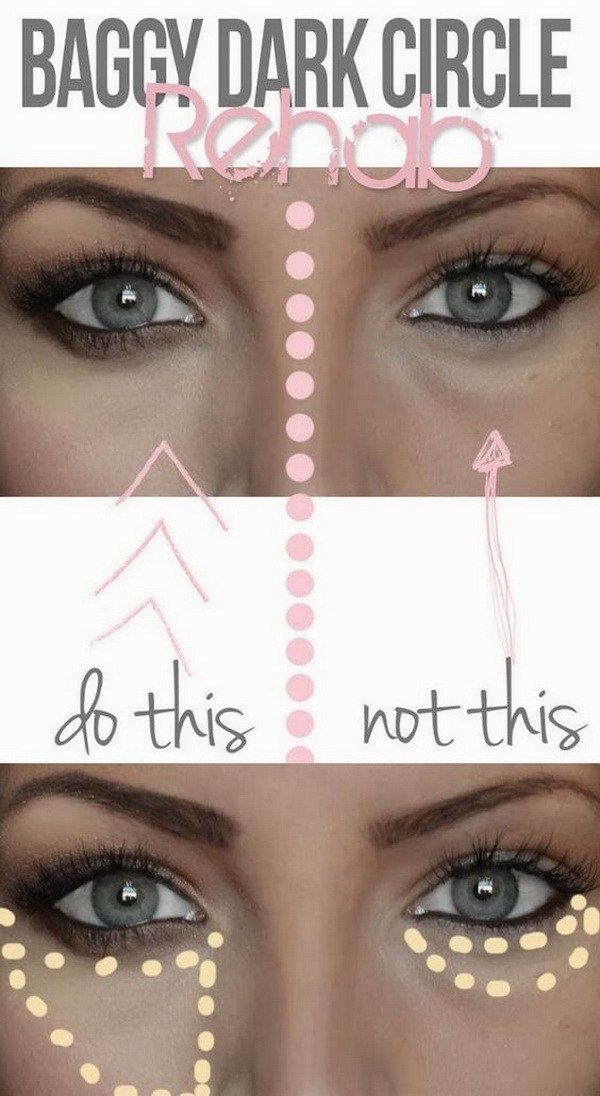 f1d489d7e38228206f2a5c06b7cdbdfd - How To Get Rid Of Black Eyes From No Sleep