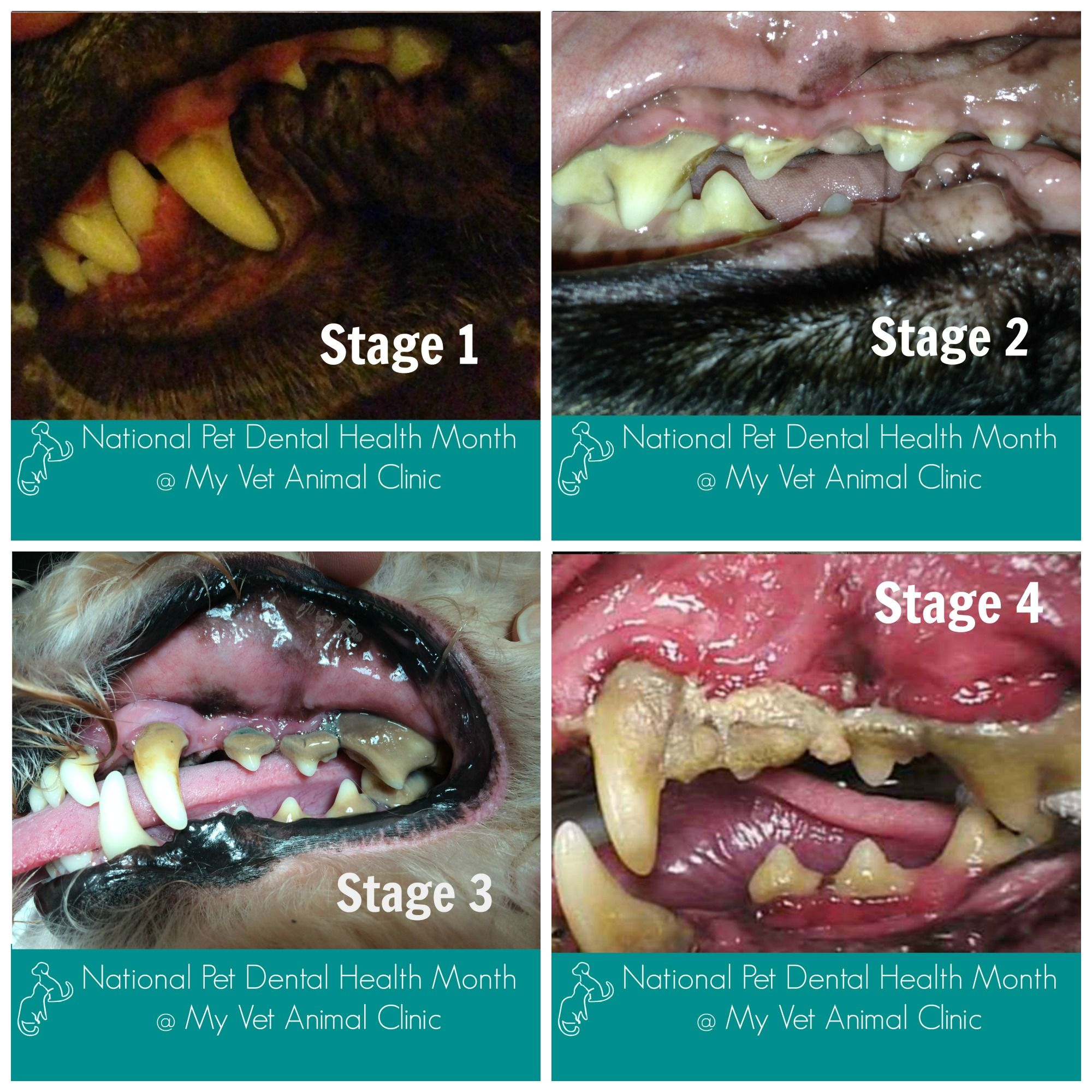 Four stages of periodontal disease. Preventive care and