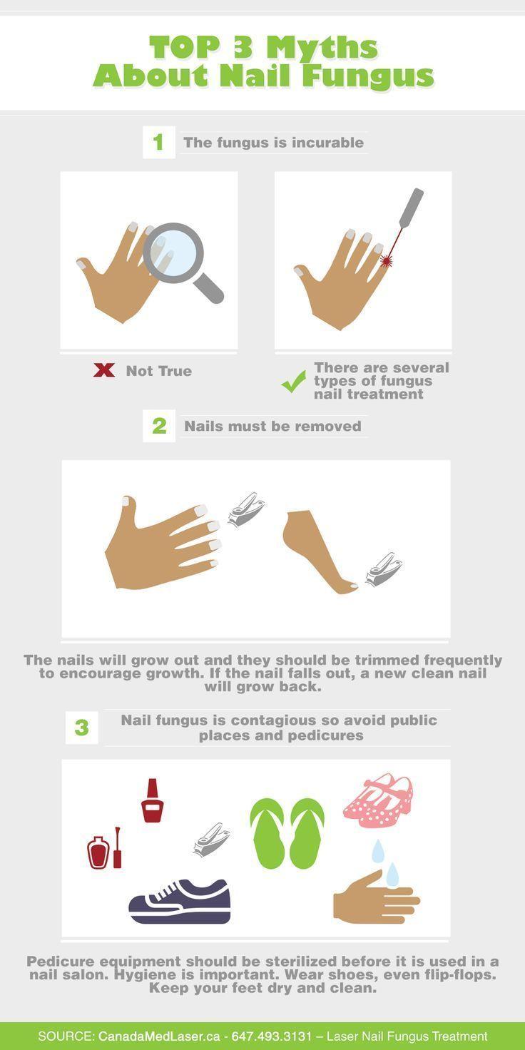 Nail-Fungus-Myths-For-Athletes.png (10002000) #toenail fungus ...
