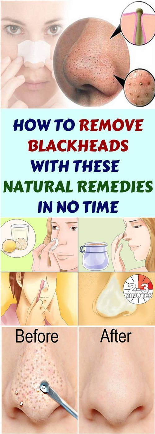 How To Remove Blackheads & These Natural Remedies In No Time!!!  #lifehacks  #fitness
