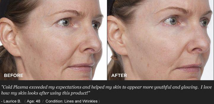 Cold Plasma Anti Aging Skin Care Anti Aging Aging