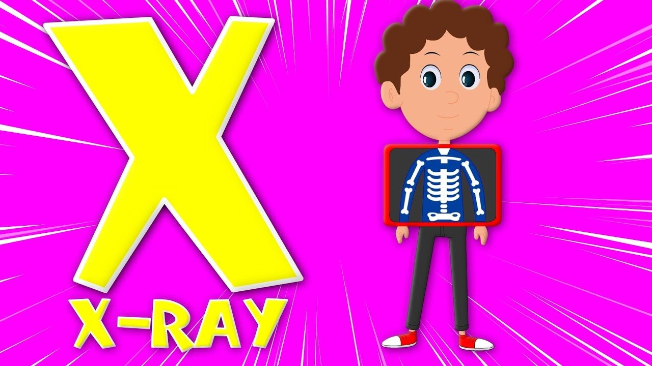 Phonics letter X | phonics songs for kids | abc song | alphabet X ...