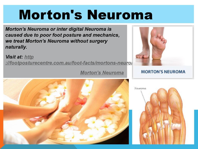 0406962f82 Morton's neuroma | Exercise,Health and Wellness | Morton's neuroma ...