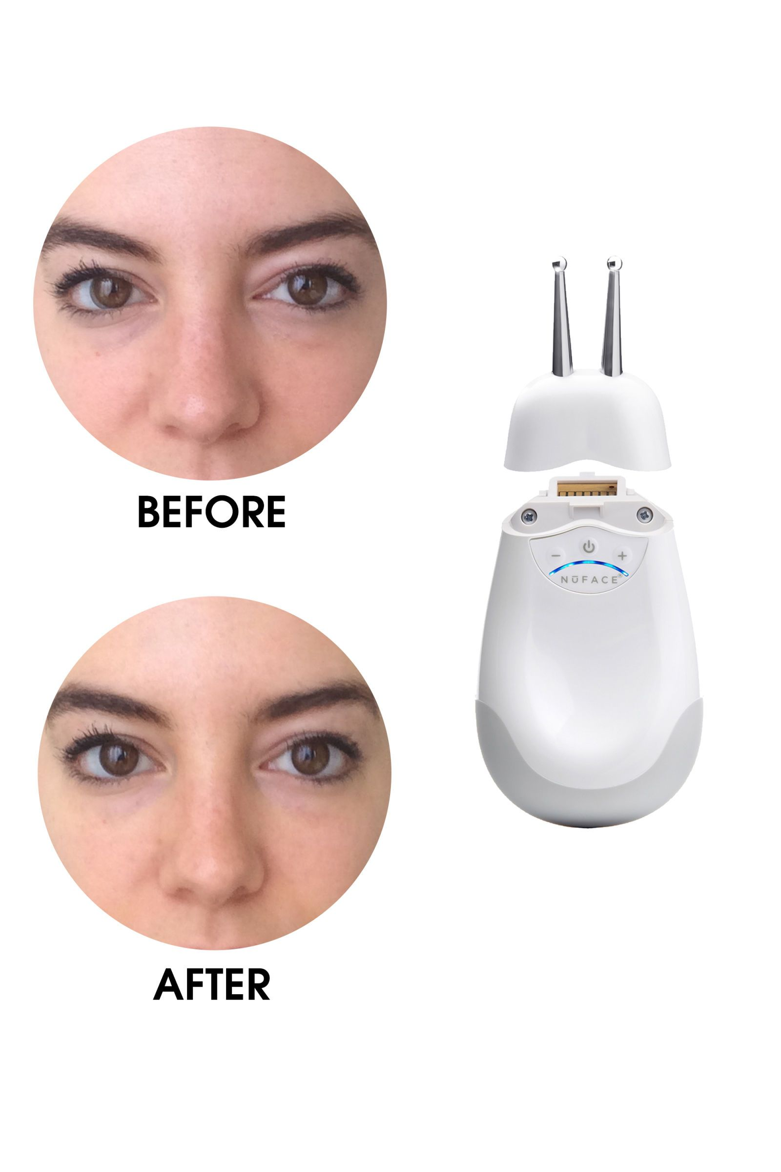 best under eye treatment