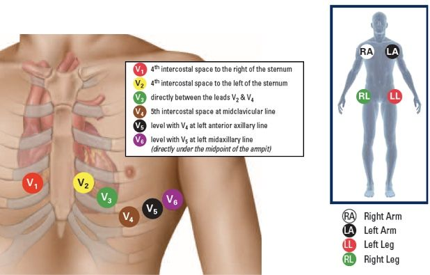 Demystifying The 12 Lead Ecg Nurse Your Own Way Ekg Interpretation Emergency Nursing Ekg Placement