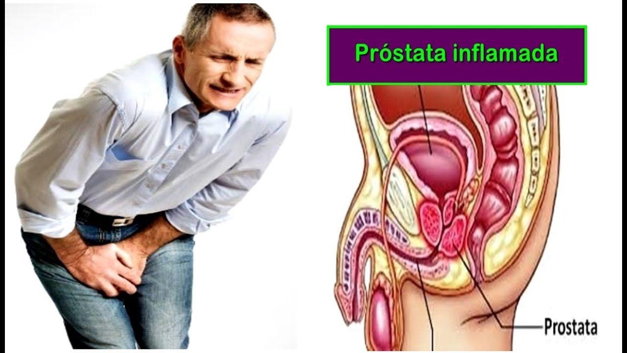 tratamiento natural inflamação da prostata