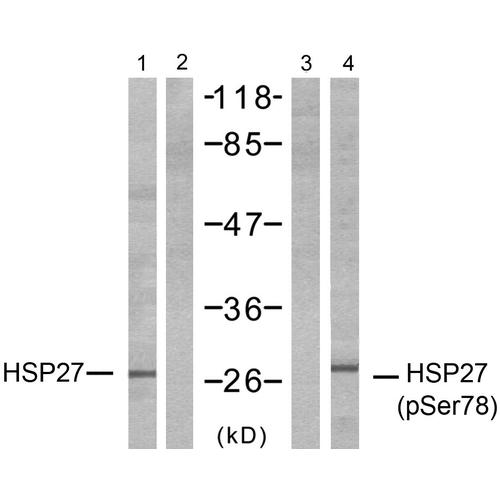 Rabbit Anti-Hsp27 Antibody (pSer78) used in Western blot (WB) on HeLa cell lysates (SPC-1265)