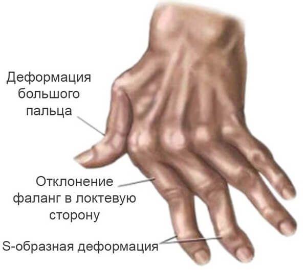 Ревматоидный артрит: внимание на симптомы, анализы ...