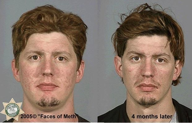 Effects Of Smoking Meth