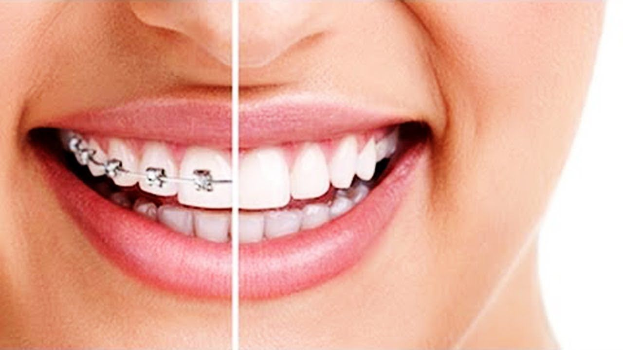 How to Straighten Teeth Without Braces Best Way to