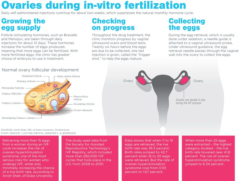 Pin on Egg Donation