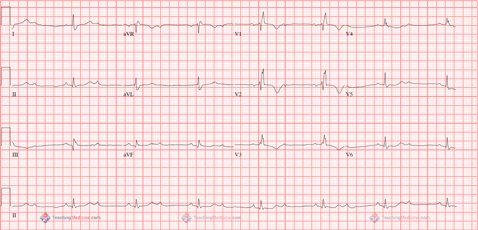 Image result for 2nd degree type 2 heart block 12 lead ecg