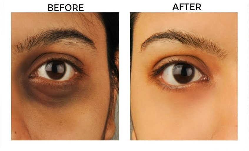 coffee | Dark eye circles, Dark circles under eyes, Remove dark circles