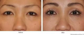 Lower eyelid surgery and upper eyelid surgery are the two types of