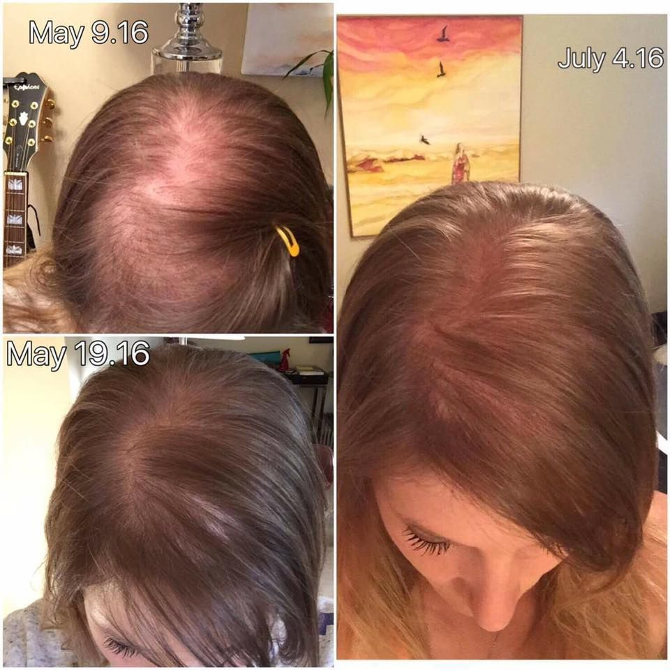 Image result for monat before and after hair growth