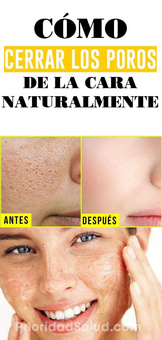 Cierra Los Poros De La Cara En 2 Minutos Rm01j Remedios Poros Abiertos Poros Dilatados Cuidado De La Piel Mascara Beauty Tutorial