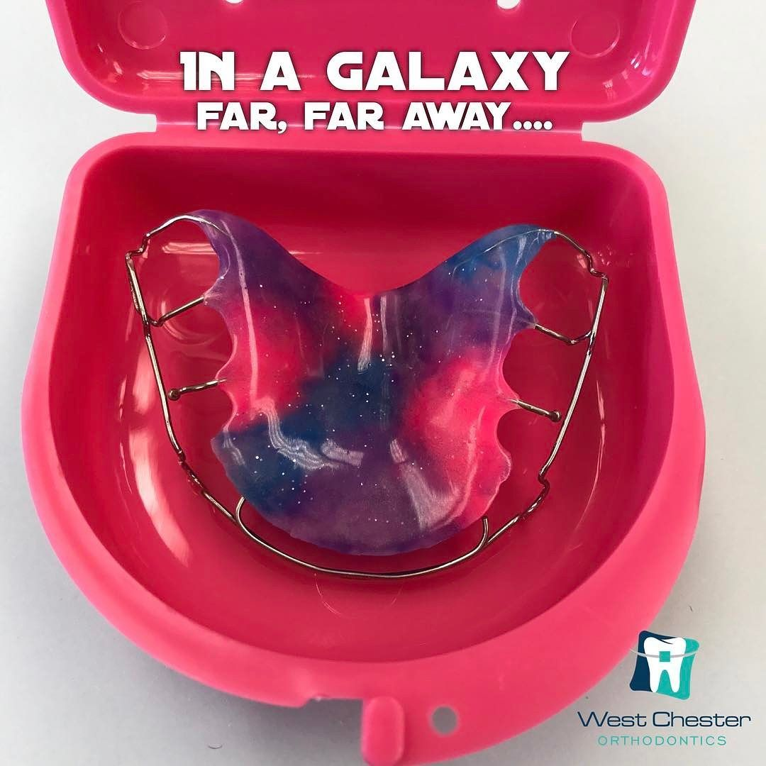 This retainer is out of this world pretty It makes you